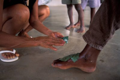 Photo: A medicinal plant from the rain forest is used to heal an infected foot at a forest workshop in Quiandeua, a small village in the Brazilian Amazon.