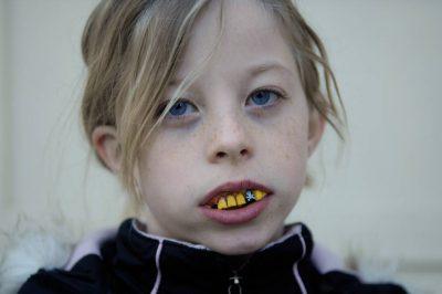 Photo: A young girl models fake bad teeth.