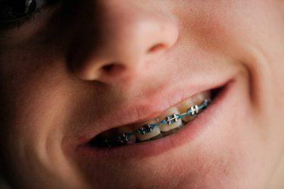 Photo: Portrait of a teenage boy with braces.