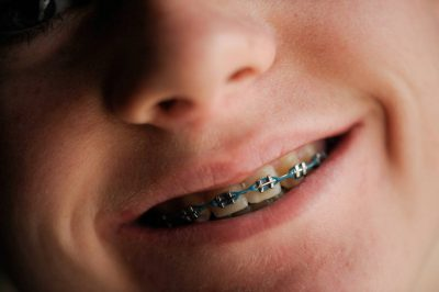 Photo: Portrait of a teenage boy with braces.