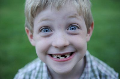 Photo: A six year old boy proudly showing his missing teeth at his home in Lincoln, Nebraska.
